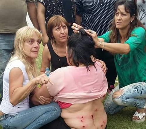 Protesters Got Injured after Riot Police Attack in Argentina. Photo taken from twitter.com